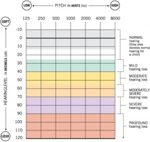 Standard Audiogram